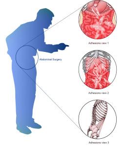 Image 28 - -surgery-adhesions